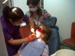 Sigilarea molarilor de 6 ani