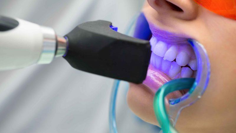 Albirea dintilor: afecteaza sau nu smaltul dintilor?