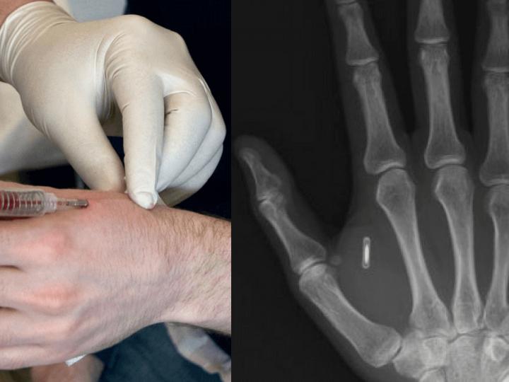 Implantarea de cipuri sub pielea elevilor. Propunere pentru respectarea distantei sociale recomandate
