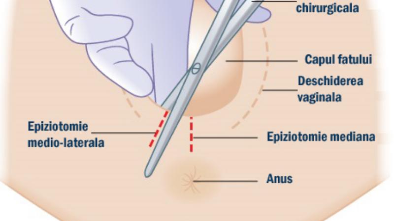 VIDEO: Epiziotomia – tot ce trebuie sa stii. Cum se face, cand este recomandata, cum sa o previi, cum te ingrijesti dupa